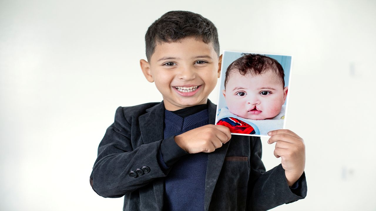 Surgeon helps give kids with cleft lips, palates the gift of a smile